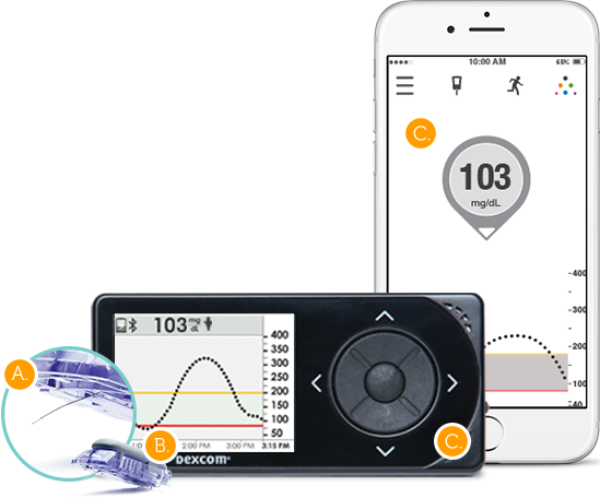 Continuous Glucose Monitoring What Is Cgm