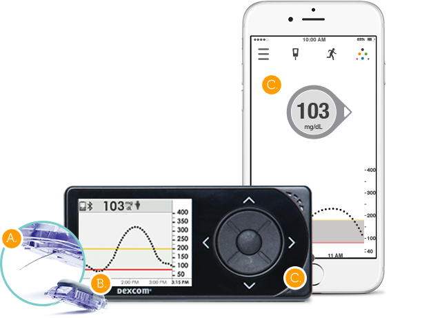 Image result for DEXCOM G5 Mobile Continuous Glucose Monitoring System