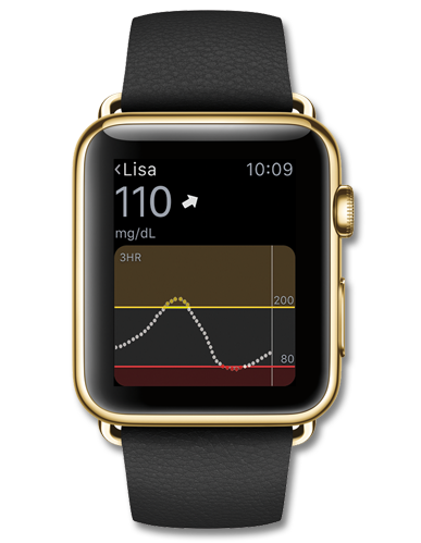 CGM data to your Apple Watch