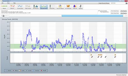 Dexcom Studio Glucose Amp Diabetes Management Software