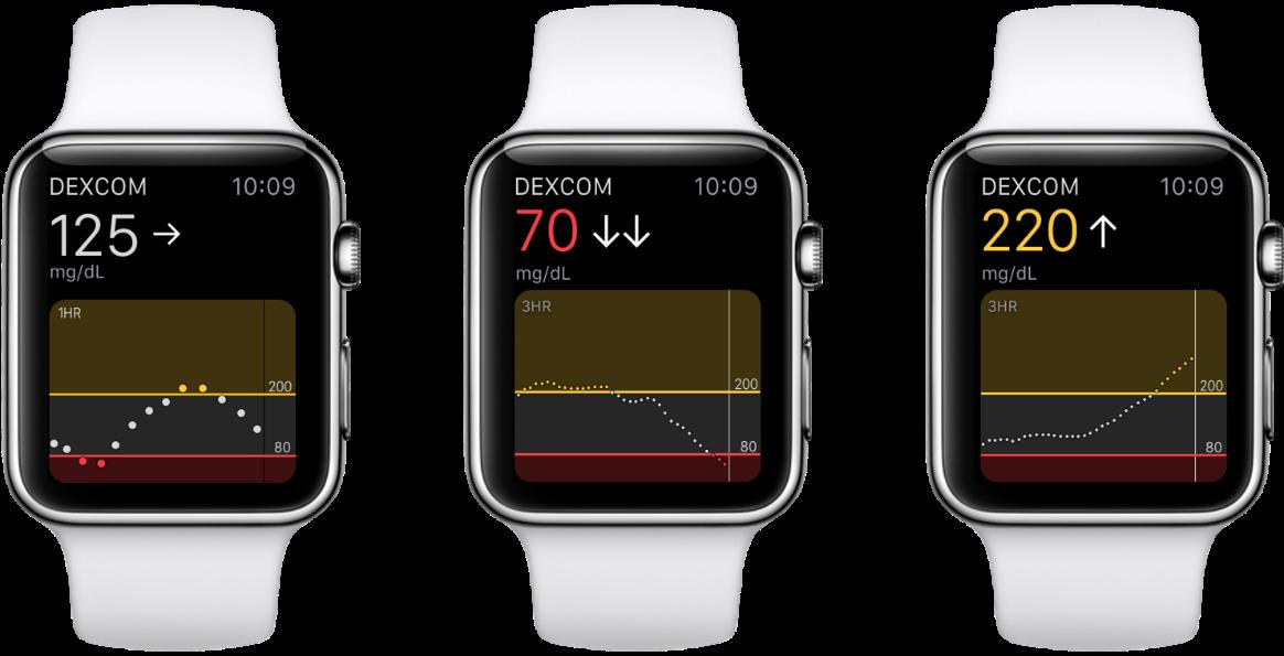 Can I view my Dexcom G6 CGM data on an Apple Watch? | Dexcom